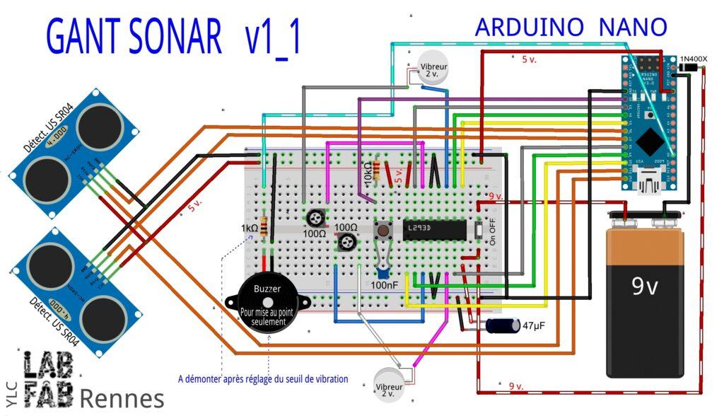 gant sonar ultrason version 3d print my human kit. Black Bedroom Furniture Sets. Home Design Ideas